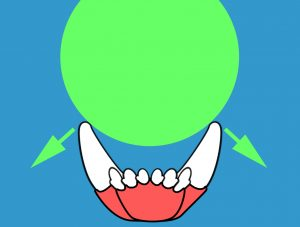 This ball is the right size to put outward force on these mandibular canines..